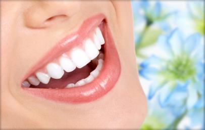 Blanqueamiento dental Conchi Mulas